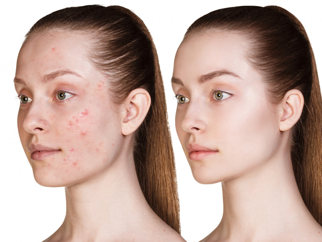 Image result for acne skin